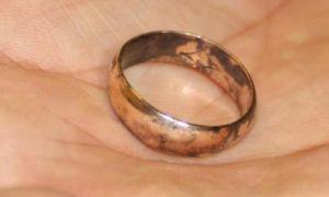 Почему чернеет золото и кожа под кольцом на пальце