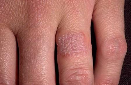 allergija-na-metall_1_1-1